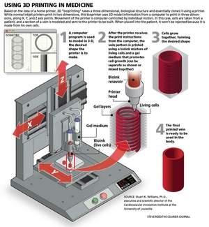 Impressão Coração 3D
