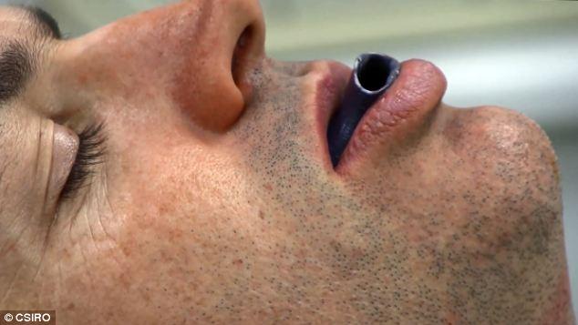 Pessoa tratamento Apnea Sono